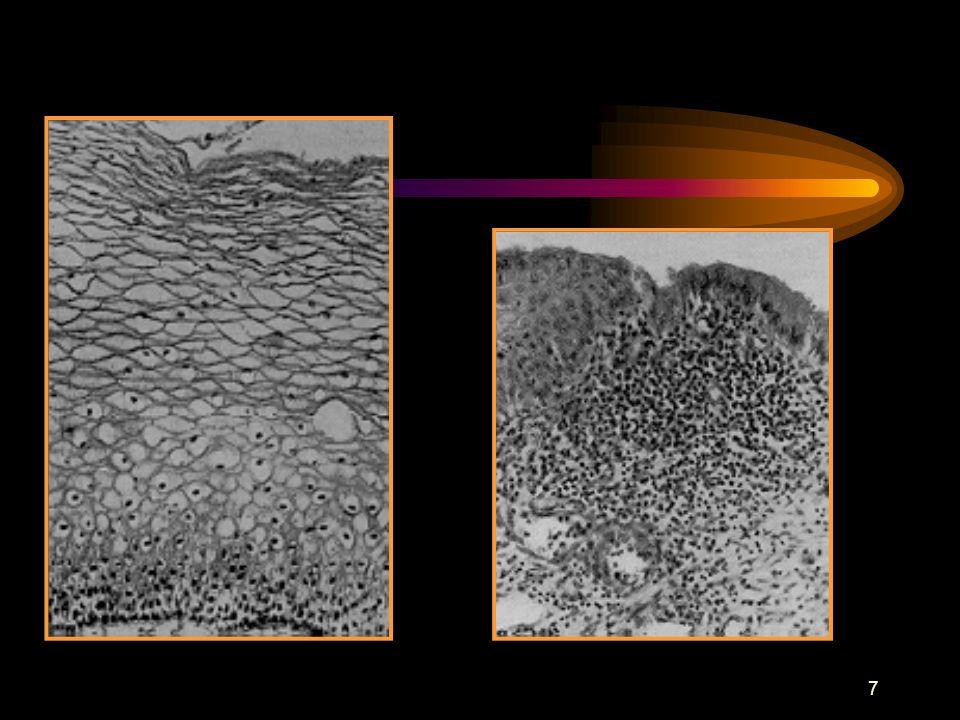 6 ANATOMIA PATOLOGICA El cérvix está tapizado de epitelio escamoso maduro (ectocérvix) y por epitelio simple mucosecretor (endocérvix) El punto de uni