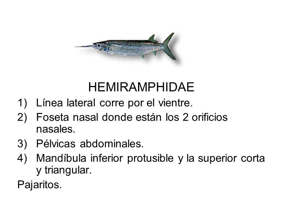 HEMIRAMPHIDAE 1)Línea lateral corre por el vientre. 2)Foseta nasal donde están los 2 orificios nasales. 3)Pélvicas abdominales. 4)Mandíbula inferior p