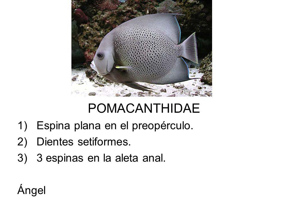 POMACANTHIDAE 1)Espina plana en el preopérculo. 2)Dientes setiformes. 3)3 espinas en la aleta anal. Ángel
