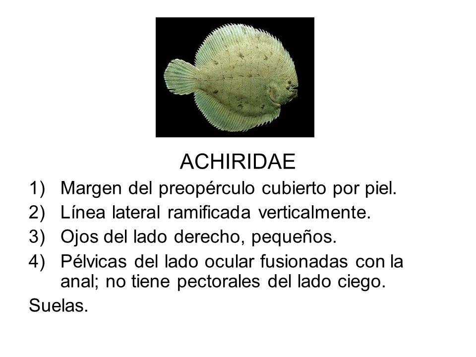 ACHIRIDAE 1)Margen del preopérculo cubierto por piel. 2)Línea lateral ramificada verticalmente. 3)Ojos del lado derecho, pequeños. 4)Pélvicas del lado