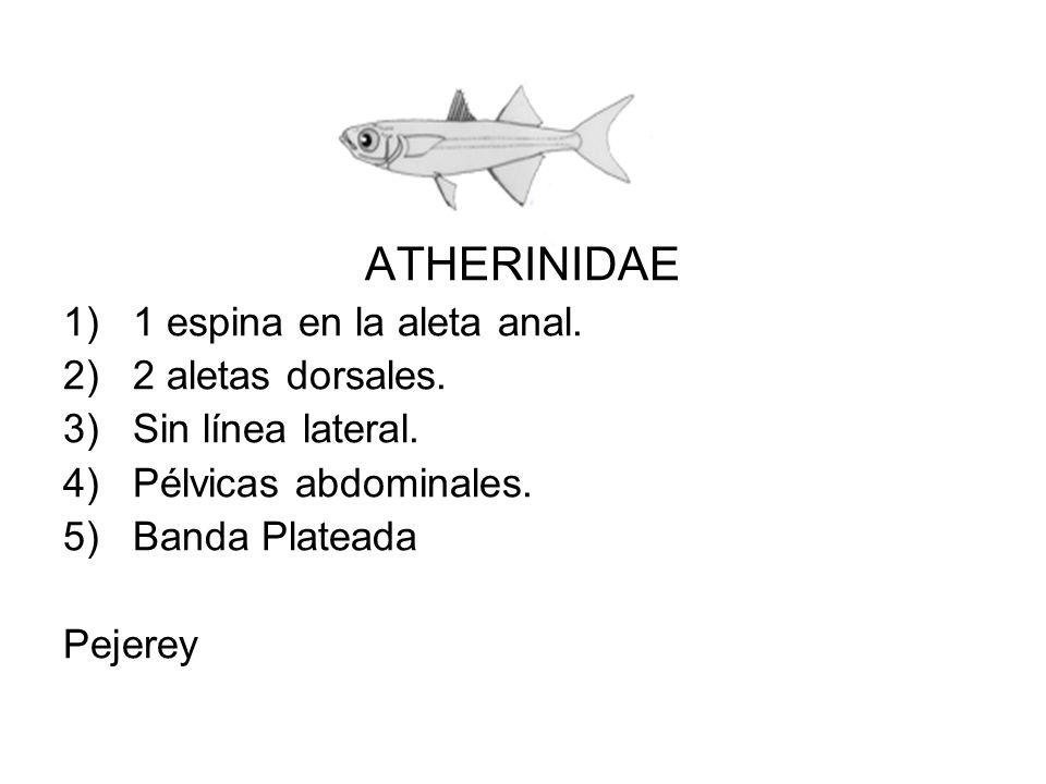 ATHERINIDAE 1)1 espina en la aleta anal. 2)2 aletas dorsales. 3)Sin línea lateral. 4)Pélvicas abdominales. 5)Banda Plateada Pejerey