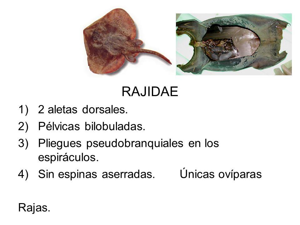 RAJIDAE 1)2 aletas dorsales. 2)Pélvicas bilobuladas. 3)Pliegues pseudobranquiales en los espiráculos. 4)Sin espinas aserradas. Únicas ovíparas Rajas.