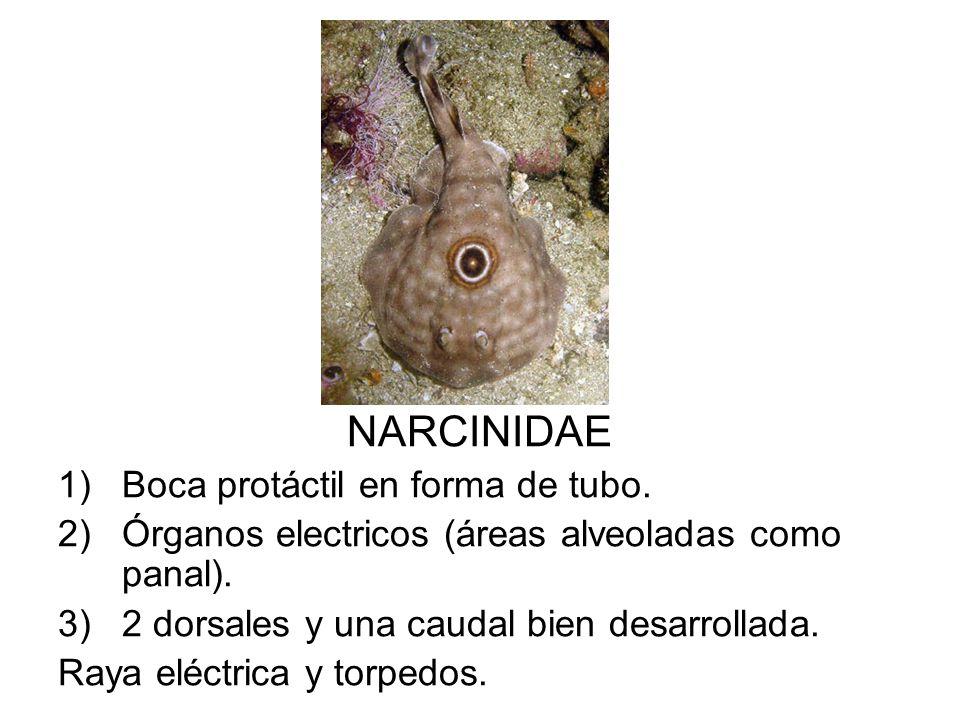 NARCINIDAE 1)Boca protáctil en forma de tubo. 2)Órganos electricos (áreas alveoladas como panal). 3)2 dorsales y una caudal bien desarrollada. Raya el