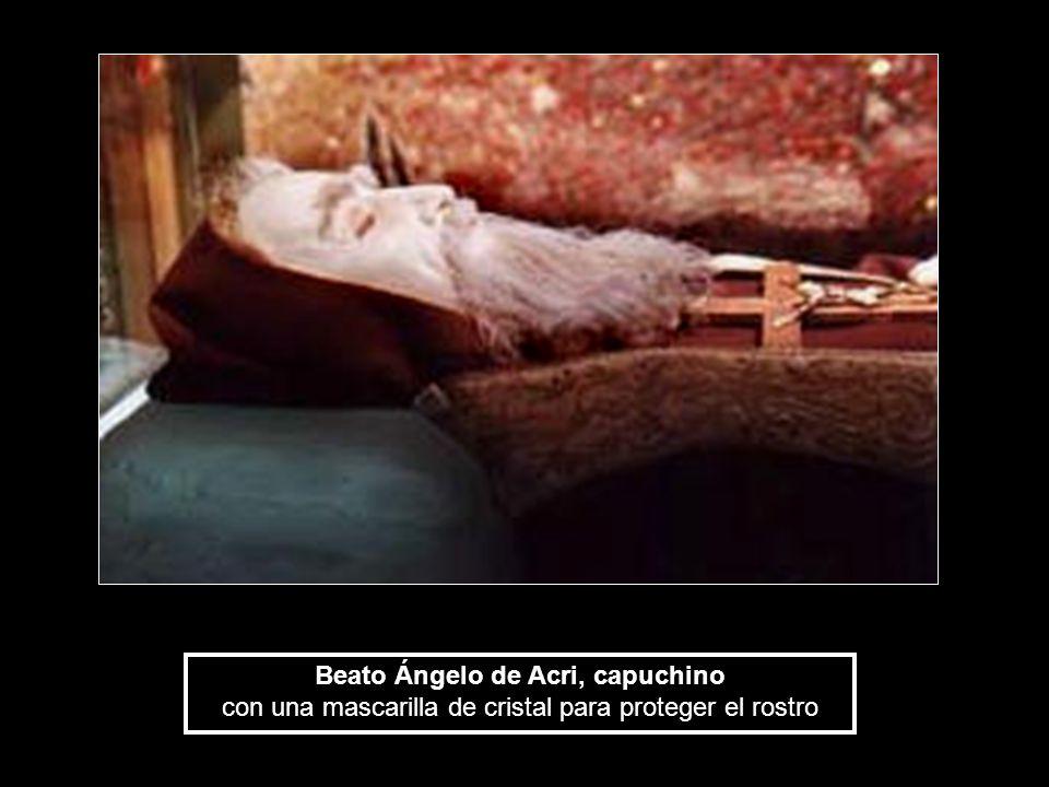 Beato Ángelo de Acri, capuchino con una mascarilla de cristal para proteger el rostro