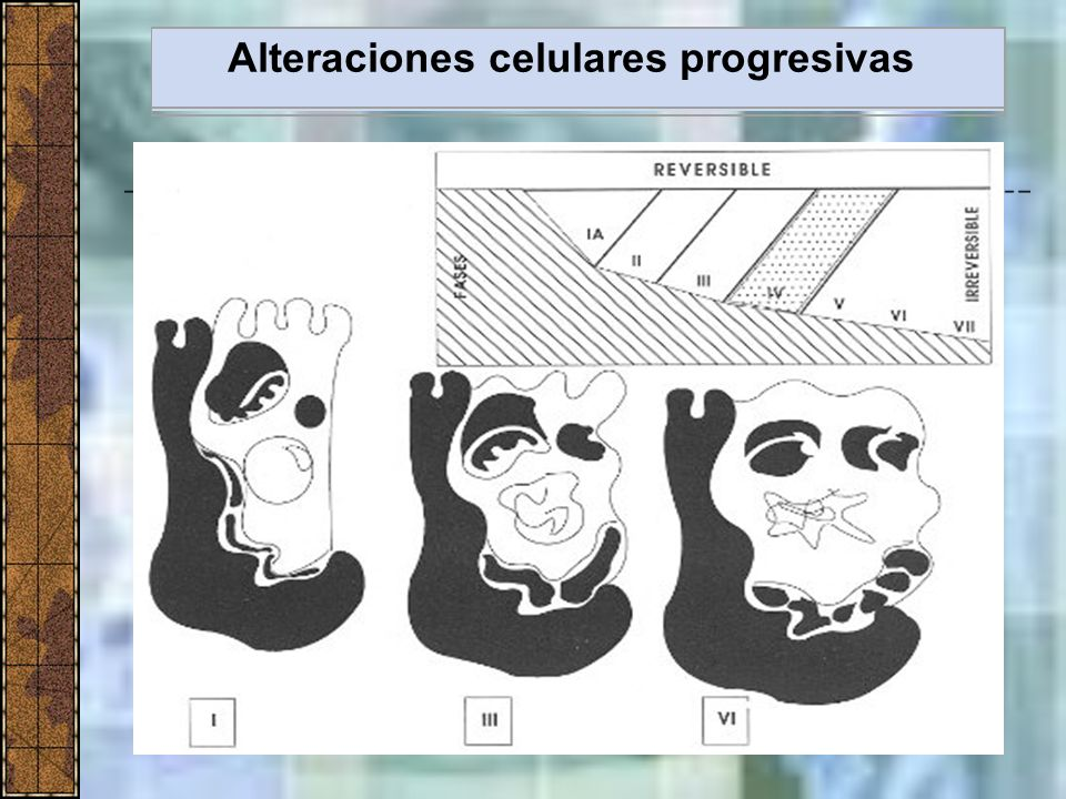 Alteraciones celulares progresivas