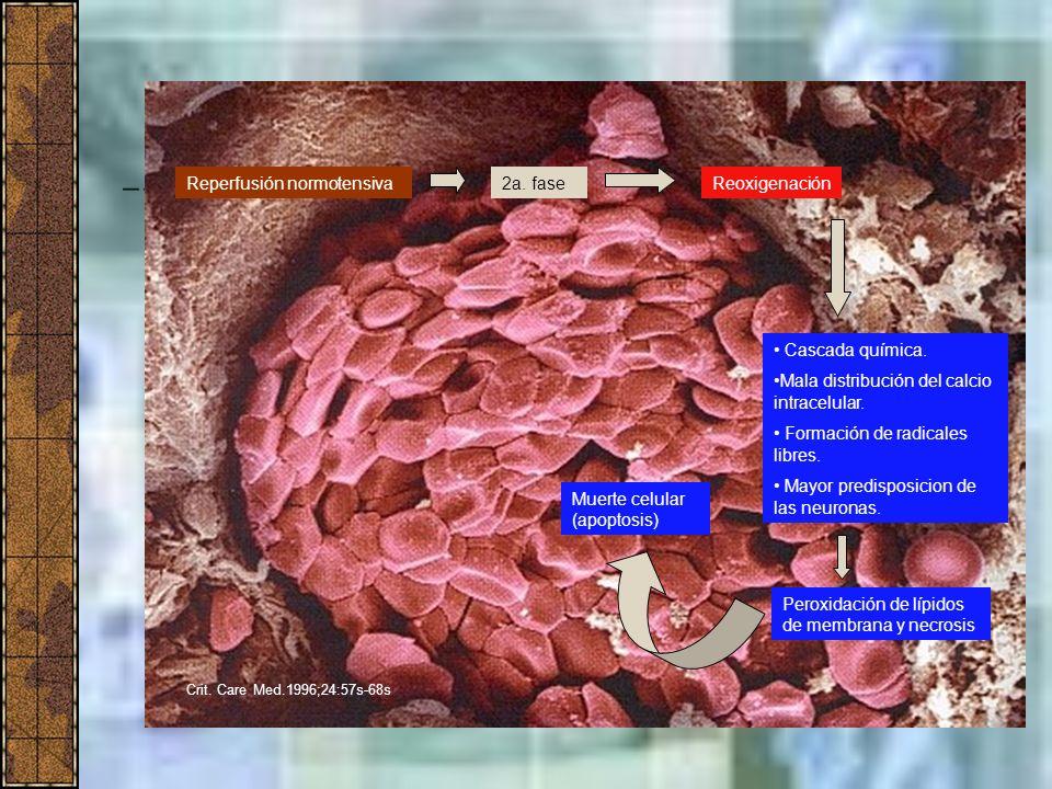 Reperfusión normotensiva Cascada química. Mala distribución del calcio intracelular. Formación de radicales libres. Mayor predisposicion de las neuron