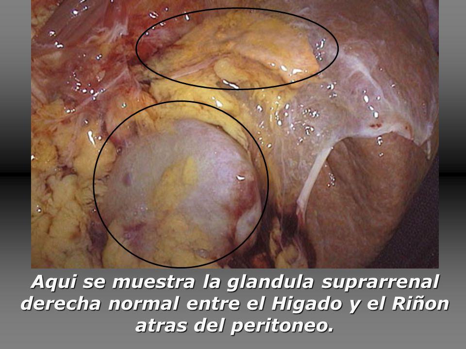 Las dos glándulas suprarrenales, con un peso aproximado de 4 gramos cada una, se sitúan en los polos superiores de los riñones.