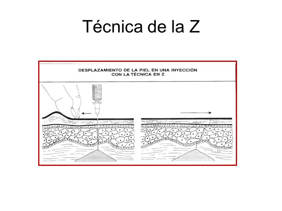 Técnica de la Z
