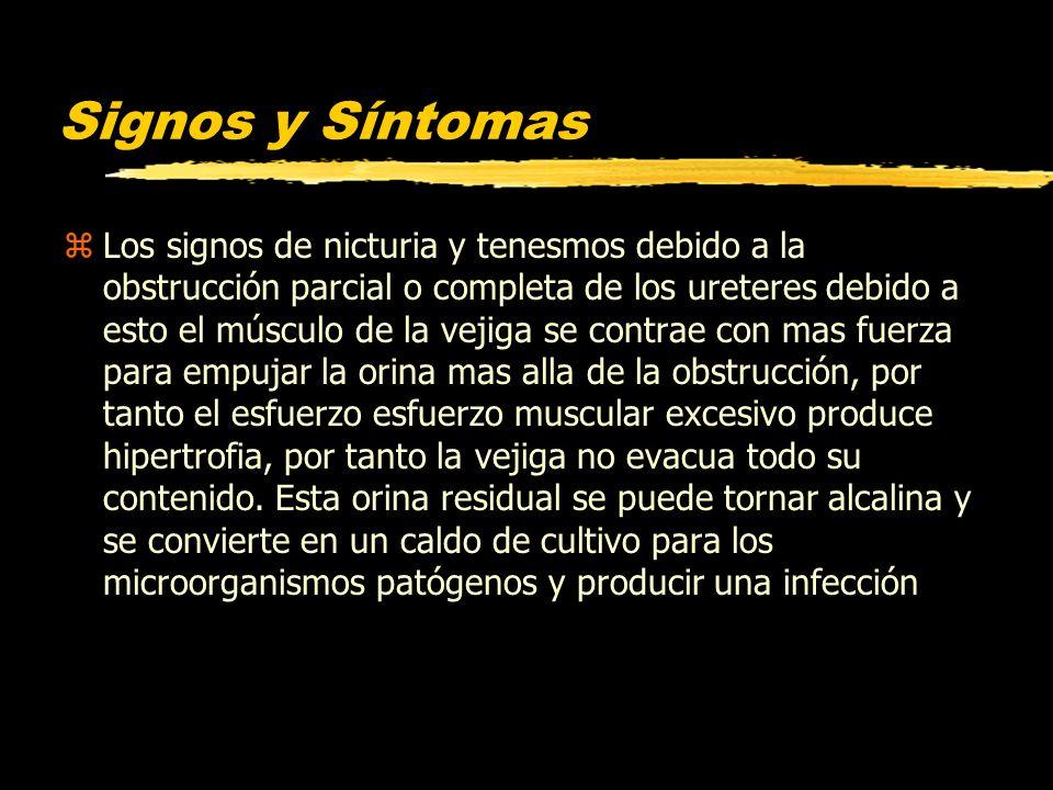 Signos y Síntomas zLos signos de nicturia y tenesmos debido a la obstrucción parcial o completa de los ureteres debido a esto el músculo de la vejiga