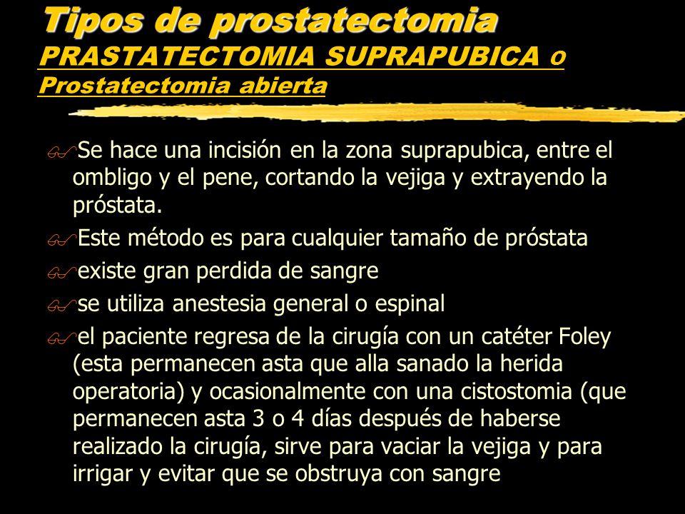 Tipos de prostatectomia Tipos de prostatectomia PRASTATECTOMIA SUPRAPUBICA O Prostatectomia abierta $Se hace una incisión en la zona suprapubica, entr