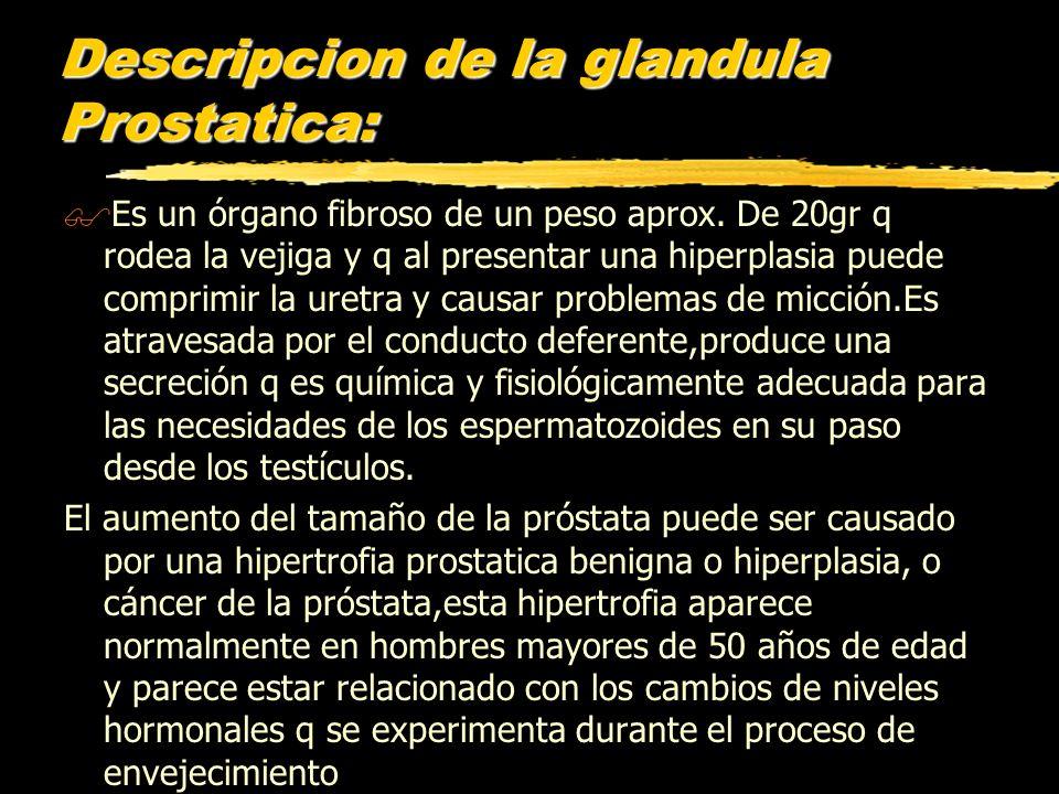 Descripcion de la glandula Prostatica: $Es un órgano fibroso de un peso aprox. De 20gr q rodea la vejiga y q al presentar una hiperplasia puede compri