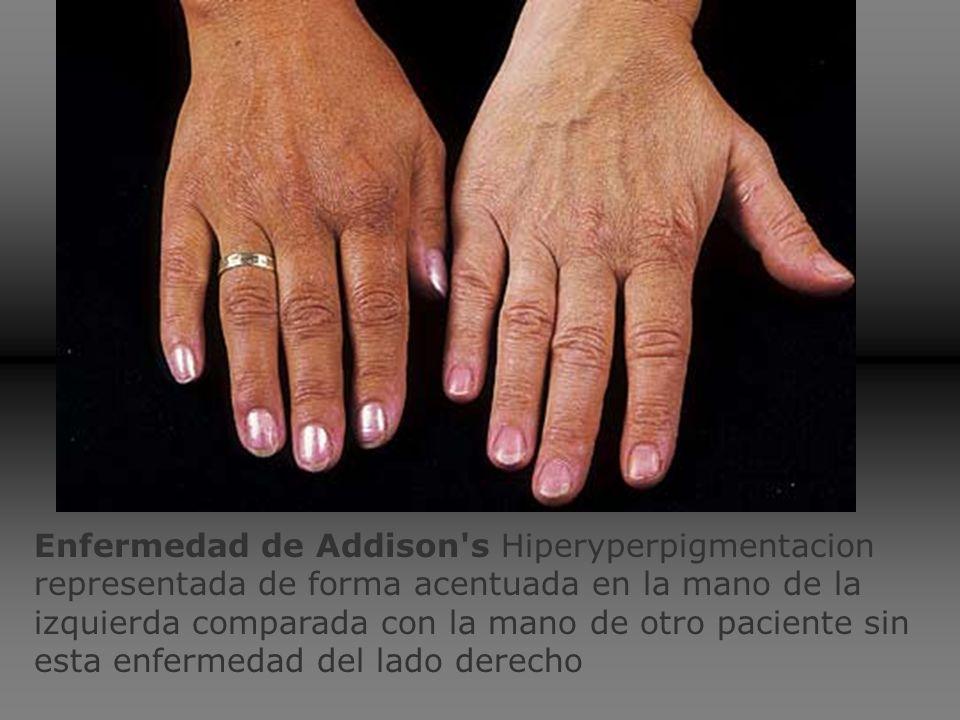 A: Bronceado y vitiligo.