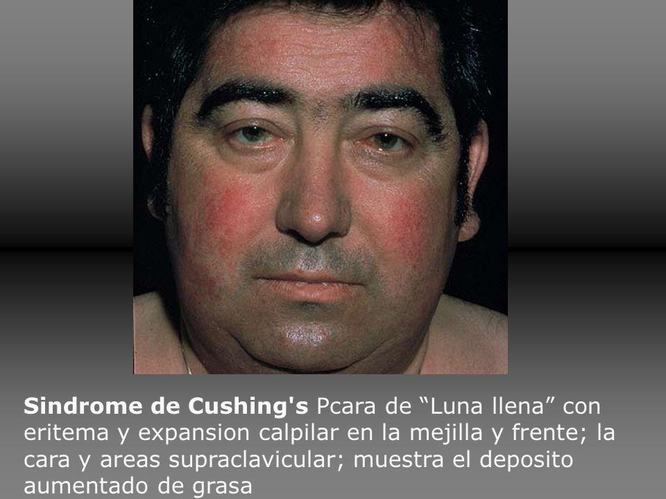 Sindrome de Cushing's Pcara de Luna llena con eritema y expansion calpilar en la mejilla y frente; la cara y areas supraclavicular; muestra el deposit