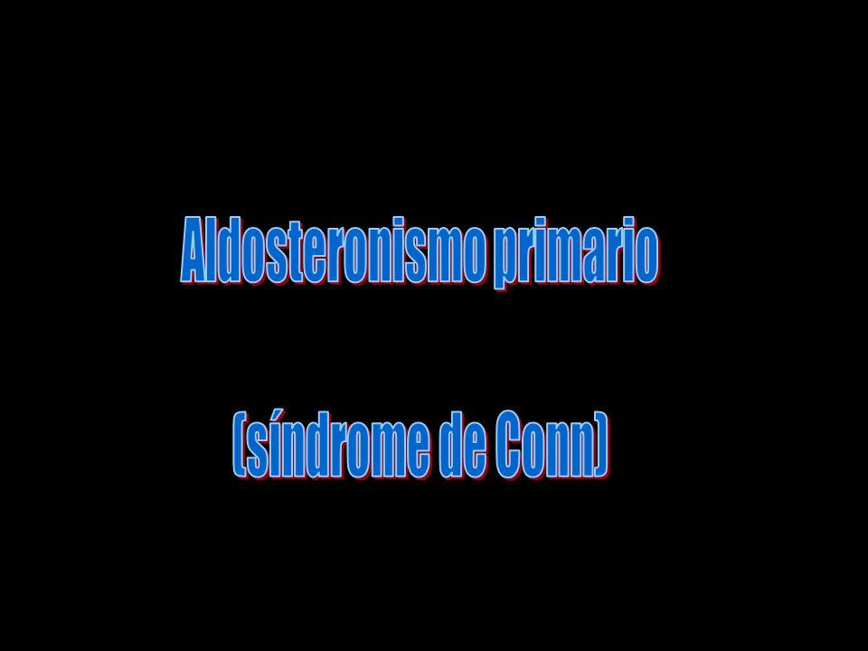 A veces, se produce un pequeño tumor en las células de la zona glomerular que secreta mucha aldosterona; el estado resultante se conoce como «hiperaldosteronismo primario» o «síndrome de Corm».