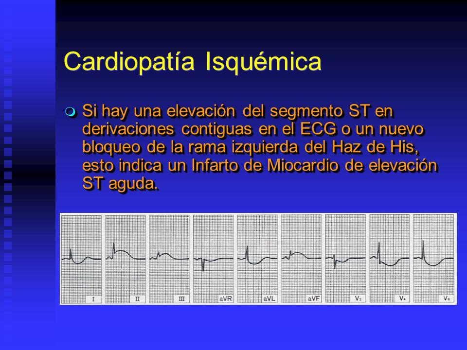 Cardiopatía Isquémica Si hay una elevación del segmento ST en derivaciones contiguas en el ECG o un nuevo bloqueo de la rama izquierda del Haz de His,
