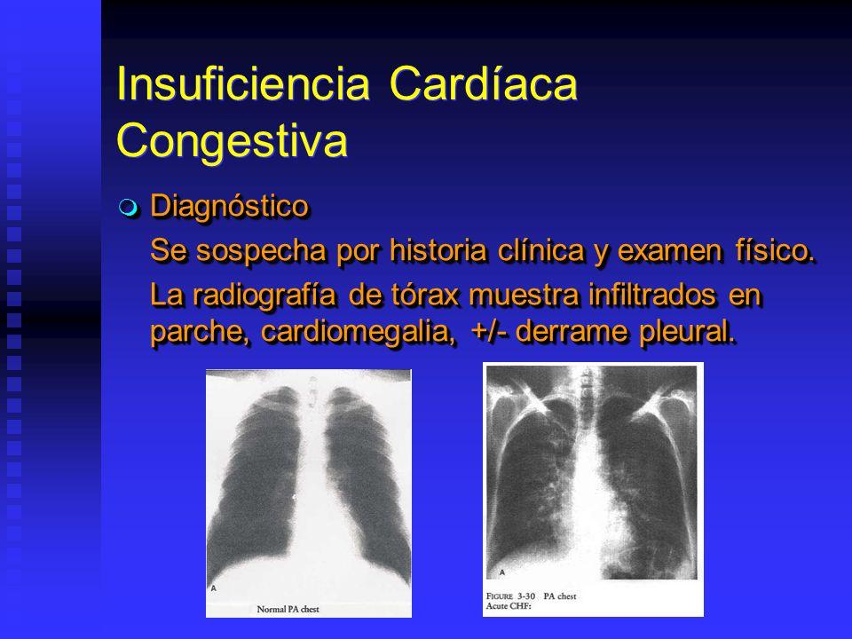 Insuficiencia Cardíaca Congestiva Diagnóstico Diagnóstico Se sospecha por historia clínica y examen físico. La radiografía de tórax muestra infiltrado
