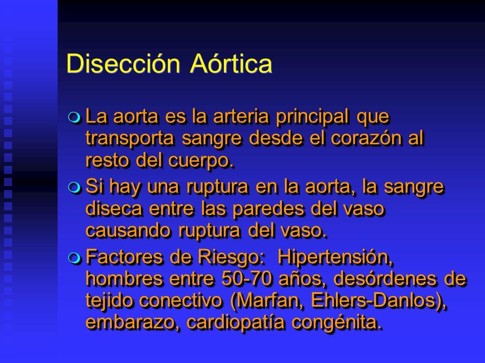 Disección Aórtica La aorta es la arteria principal que transporta sangre desde el corazón al resto del cuerpo. La aorta es la arteria principal que tr
