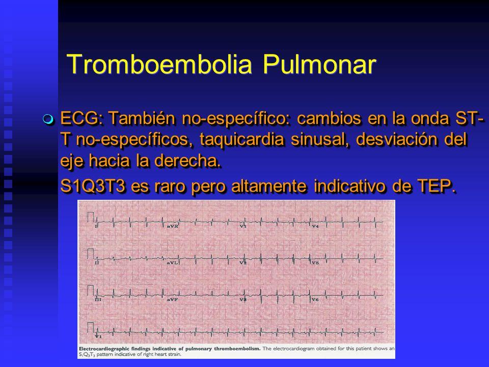 Tromboembolia Pulmonar ECG: También no-específico: cambios en la onda ST- T no-específicos, taquicardia sinusal, desviación del eje hacia la derecha.