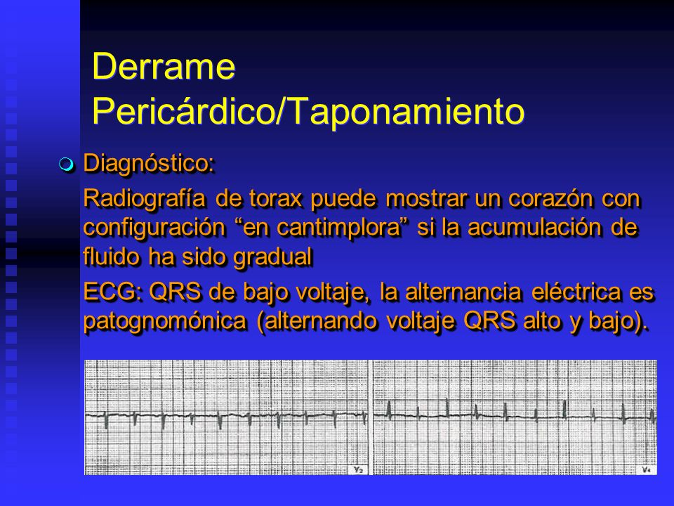 Derrame Pericárdico/Taponamiento Diagnóstico: Diagnóstico: Radiografía de torax puede mostrar un corazón con configuración en cantimplora si la acumulación de fluido ha sido gradual ECG: QRS de bajo voltaje, la alternancia eléctrica es patognomónica (alternando voltaje QRS alto y bajo).