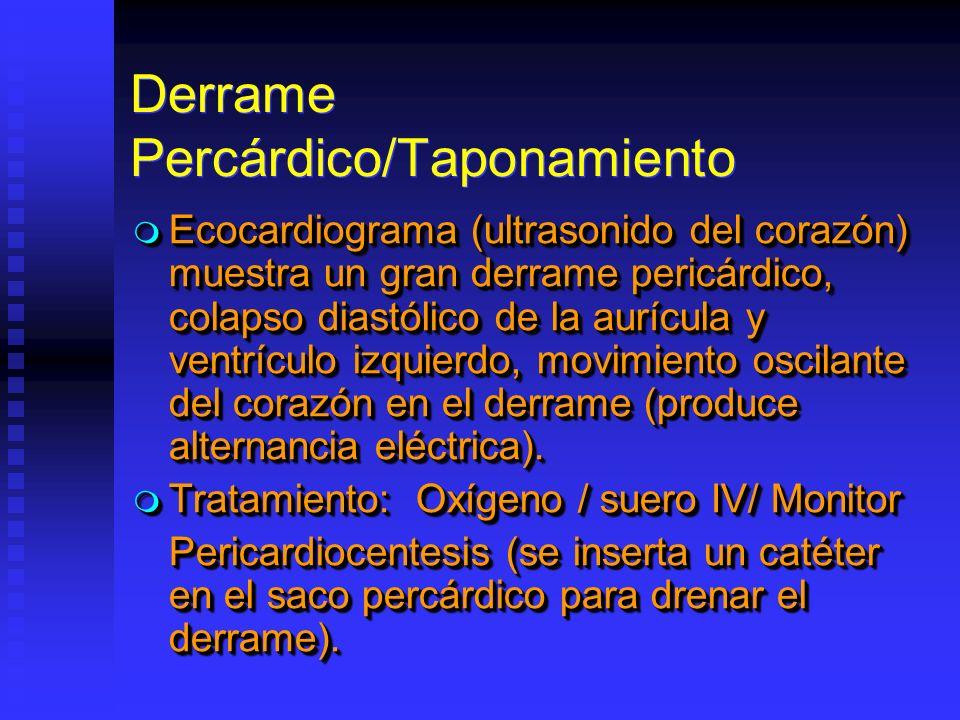 Derrame Percárdico/Taponamiento Ecocardiograma (ultrasonido del corazón) muestra un gran derrame pericárdico, colapso diastólico de la aurícula y ventrículo izquierdo, movimiento oscilante del corazón en el derrame (produce alternancia eléctrica).