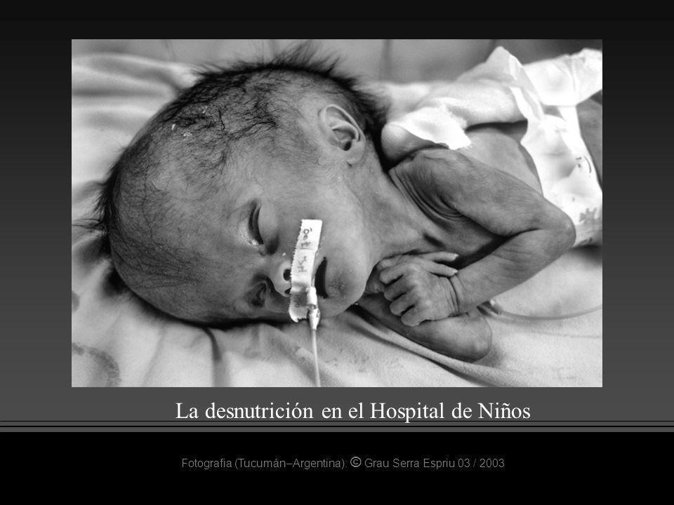 La desnutrición en el Hospital de Niños