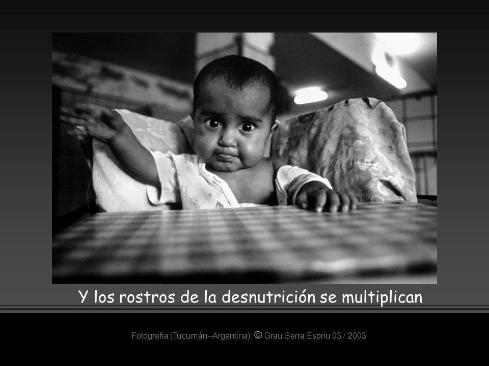 Fotografia (Tucumán–Argentina): © Grau Serra Espriu 03 / 2003 Y los rostros de la desnutrición se multiplican