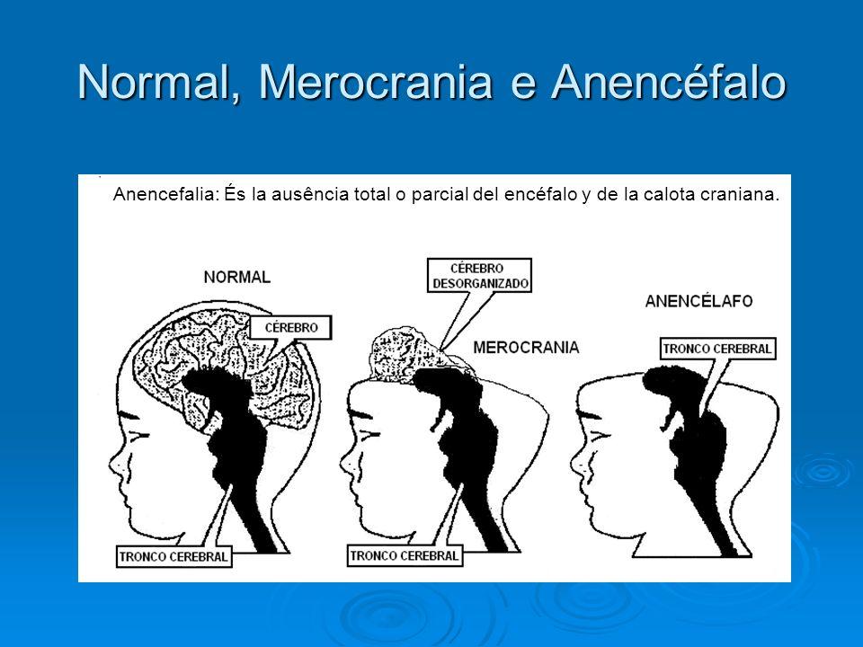 Normal, Merocrania e Anencéfalo Anencefalia: És la ausência total o parcial del encéfalo y de la calota craniana.
