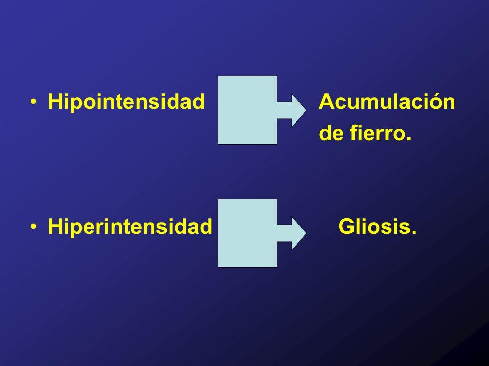 Hipointensidad Acumulación de fierro. Hiperintensidad Gliosis.