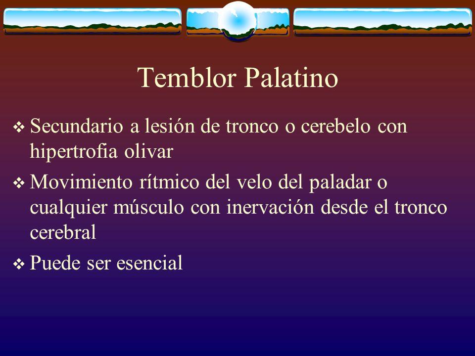 Temblor Palatino Secundario a lesión de tronco o cerebelo con hipertrofia olivar Movimiento rítmico del velo del paladar o cualquier músculo con inerv