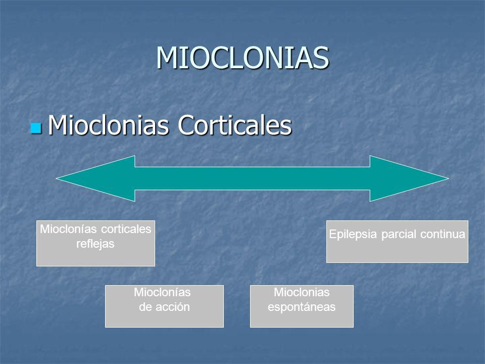 MIOCLONIAS Mioclonias Corticales Mioclonias Corticales Mioclonías corticales reflejas Epilepsia parcial continua Mioclonías de acción Mioclonias espon