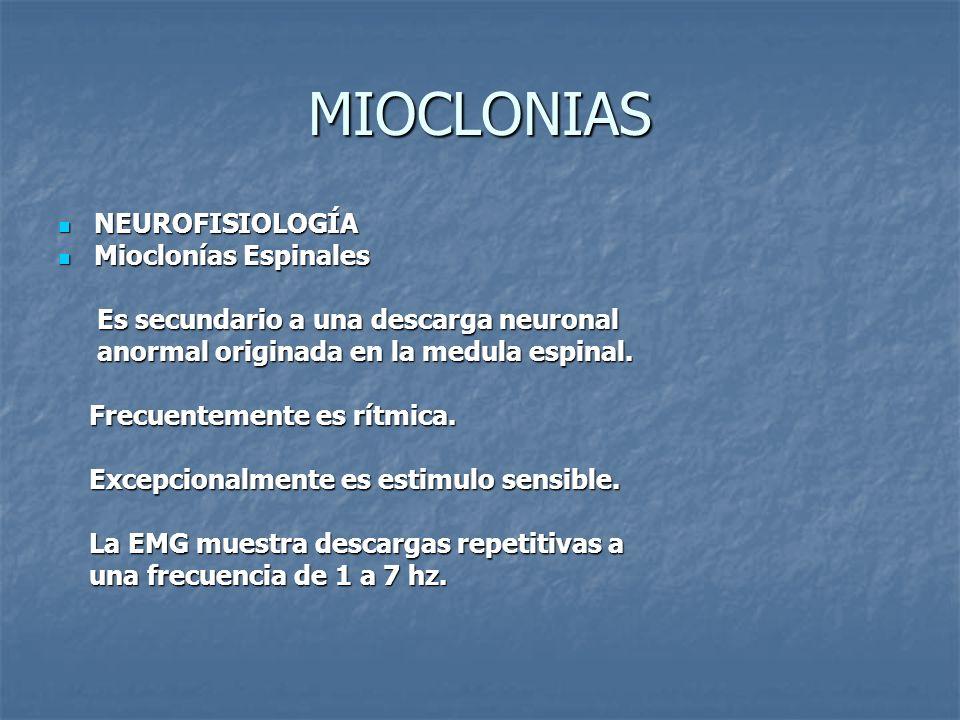 MIOCLONIAS NEUROFISIOLOGÍA NEUROFISIOLOGÍA Mioclonías Espinales Mioclonías Espinales Es secundario a una descarga neuronal Es secundario a una descarg