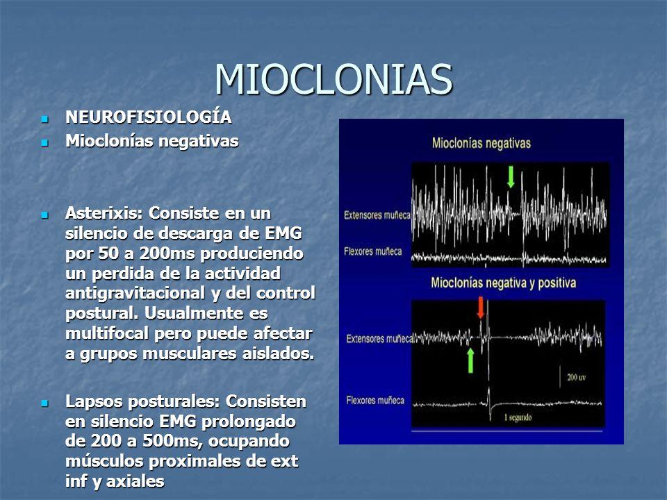 MIOCLONIAS NEUROFISIOLOGÍA NEUROFISIOLOGÍA Mioclonías negativas Mioclonías negativas Asterixis: Consiste en un silencio de descarga de EMG por 50 a 20