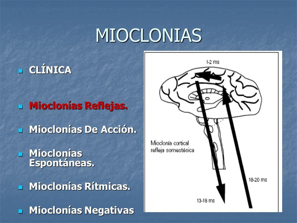 MIOCLONIAS CLÍNICA CLÍNICA Mioclonías Reflejas. Mioclonías Reflejas. Mioclonías De Acción. Mioclonías De Acción. Mioclonías Espontáneas. Mioclonías Es