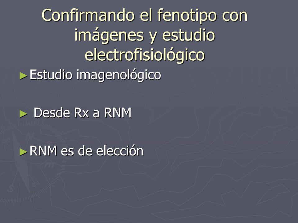 Confirmando el fenotipo con imágenes y estudio electrofisiológico Estudio imagenológico Estudio imagenológico Desde Rx a RNM Desde Rx a RNM RNM es de