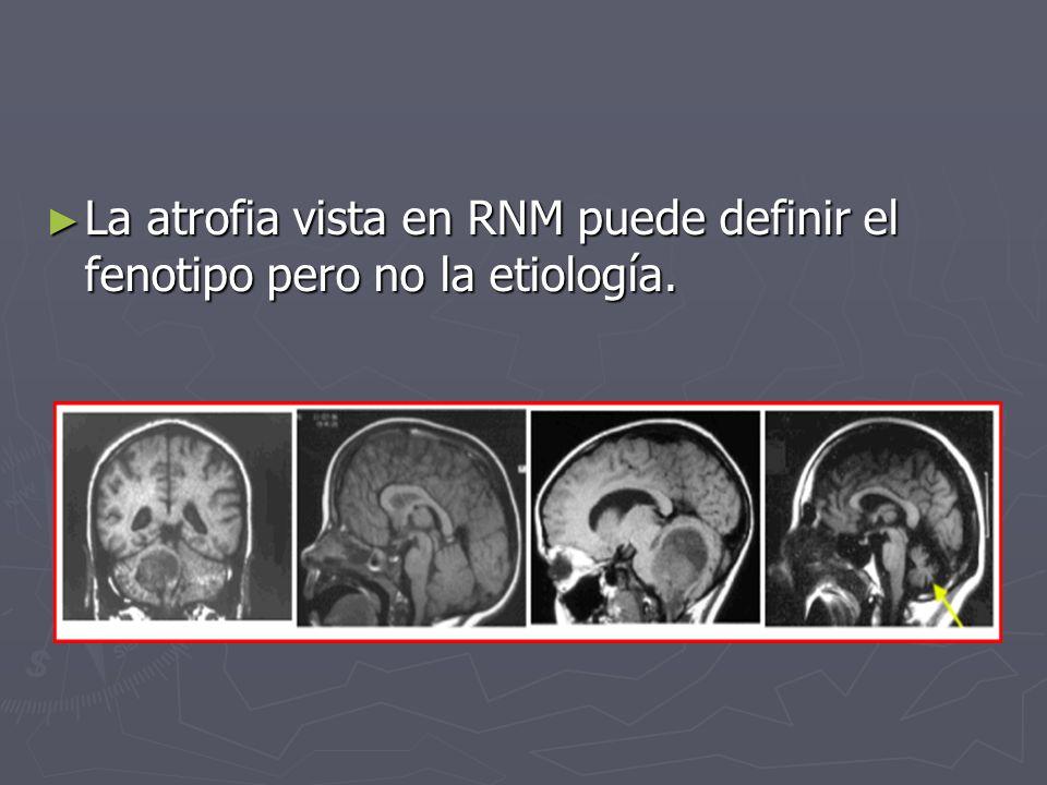 La atrofia vista en RNM puede definir el fenotipo pero no la etiología. La atrofia vista en RNM puede definir el fenotipo pero no la etiología.