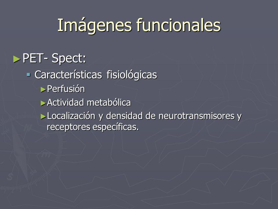 Imágenes funcionales PET- Spect: PET- Spect: Características fisiológicas Características fisiológicas Perfusión Perfusión Actividad metabólica Activi