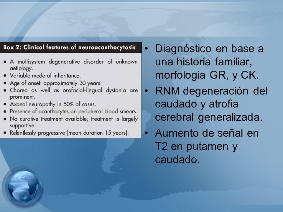 Diagnóstico en base a una historia familiar, morfologia GR, y CK. RNM degeneración del caudado y atrofia cerebral generalizada. Aumento de señal en T2