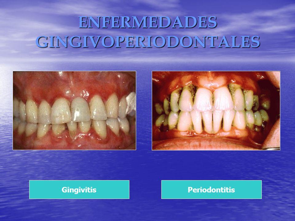 ENFERMEDADES GINGIVOPERIODONTALES GingivitisPeriodontitis