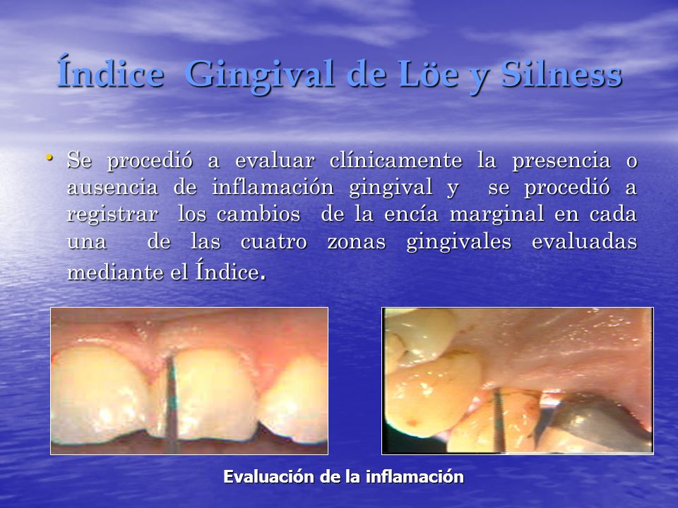 Índice Gingival de Löe y Silness Se procedió a evaluar clínicamente la presencia o ausencia de inflamación gingival y se procedió a registrar los camb