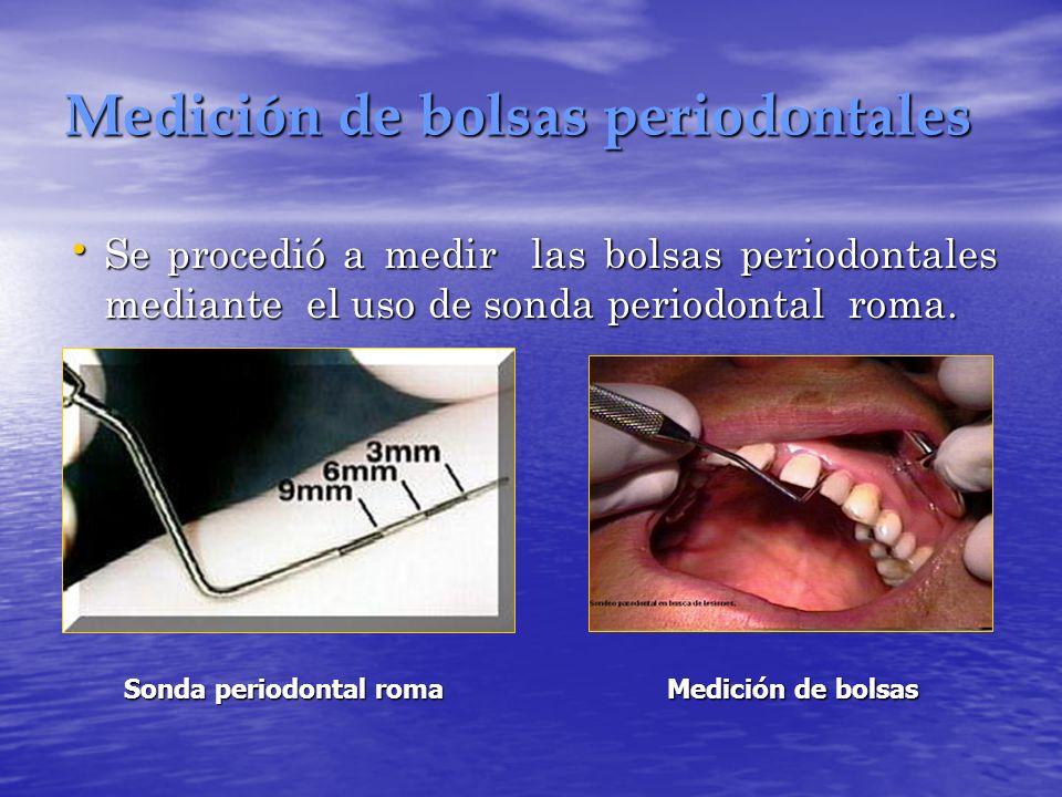 Medición de bolsas periodontales Se procedió a medir las bolsas periodontales mediante el uso de sonda periodontal roma. Se procedió a medir las bolsa