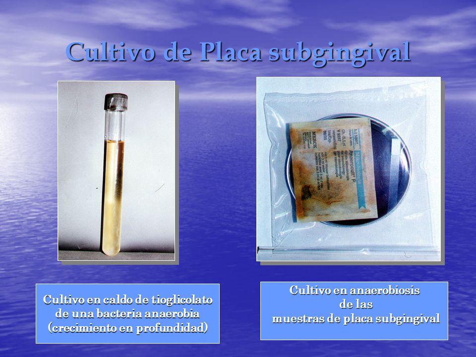 Cultivo de Placa subgingival Cultivo en caldo de tioglicolato de una bacteria anaerobia (crecimiento en profundidad) Cultivo en anaerobiosis de las de