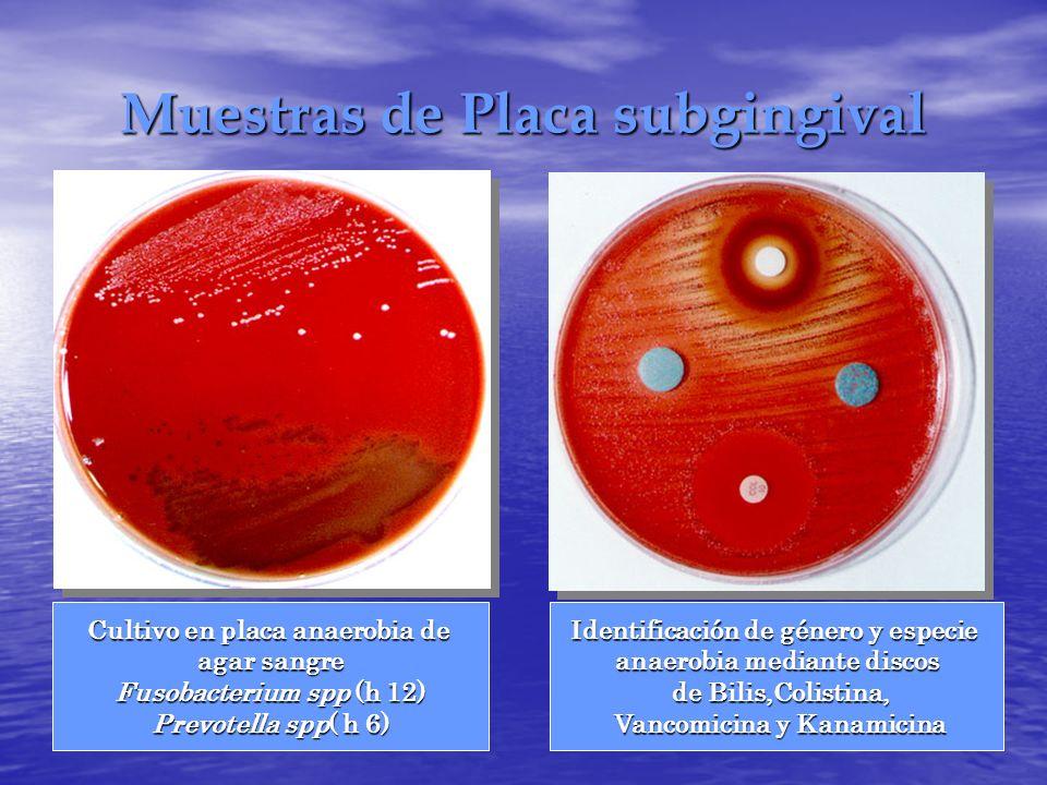 Muestras de Placa subgingival Cultivo en placa anaerobia de agar sangre Fusobacterium spp (h 12) Prevotella spp( h 6) Identificación de género y espec