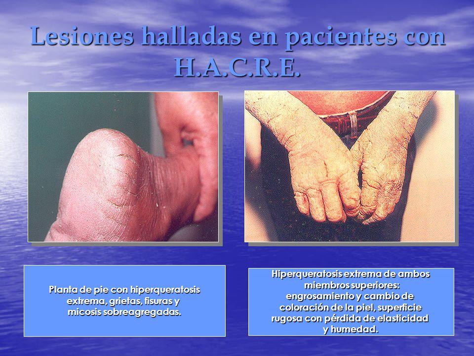 Lesiones halladas en pacientes con H.A.C.R.E. Planta de pie con hiperqueratosis extrema, grietas, fisuras y micosis sobreagregadas. Hiperqueratosis ex