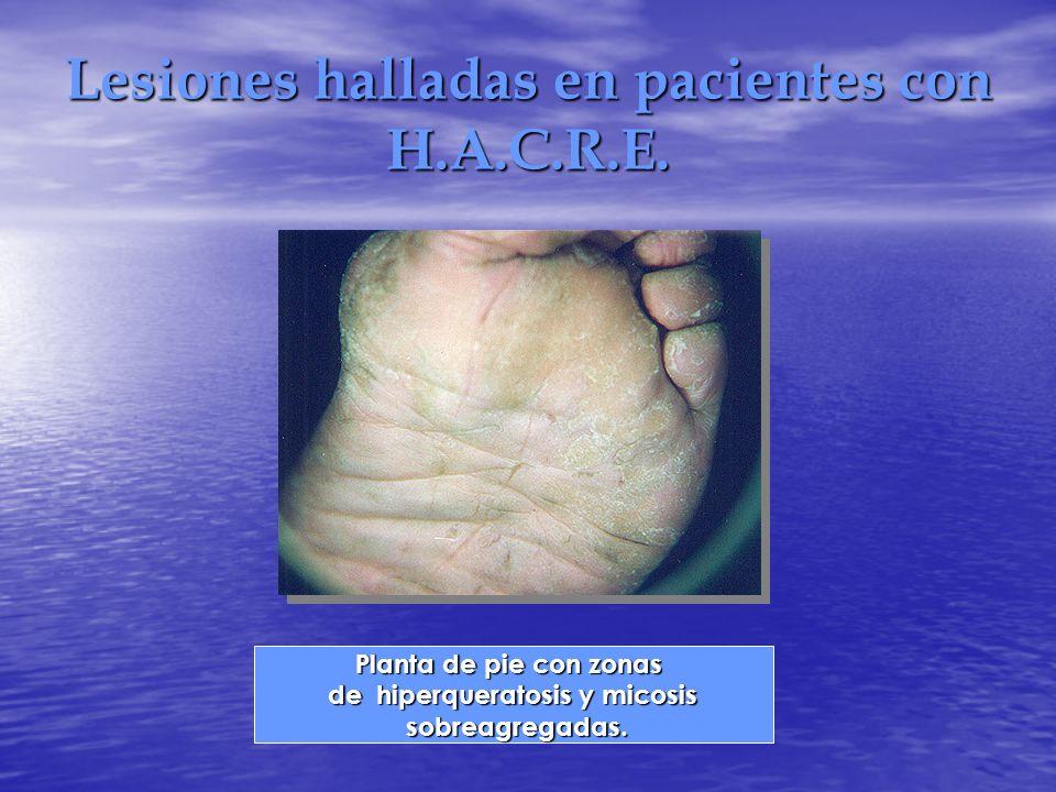 Lesiones halladas en pacientes con H.A.C.R.E. Planta de pie con zonas de hiperqueratosis y micosis sobreagregadas. sobreagregadas.
