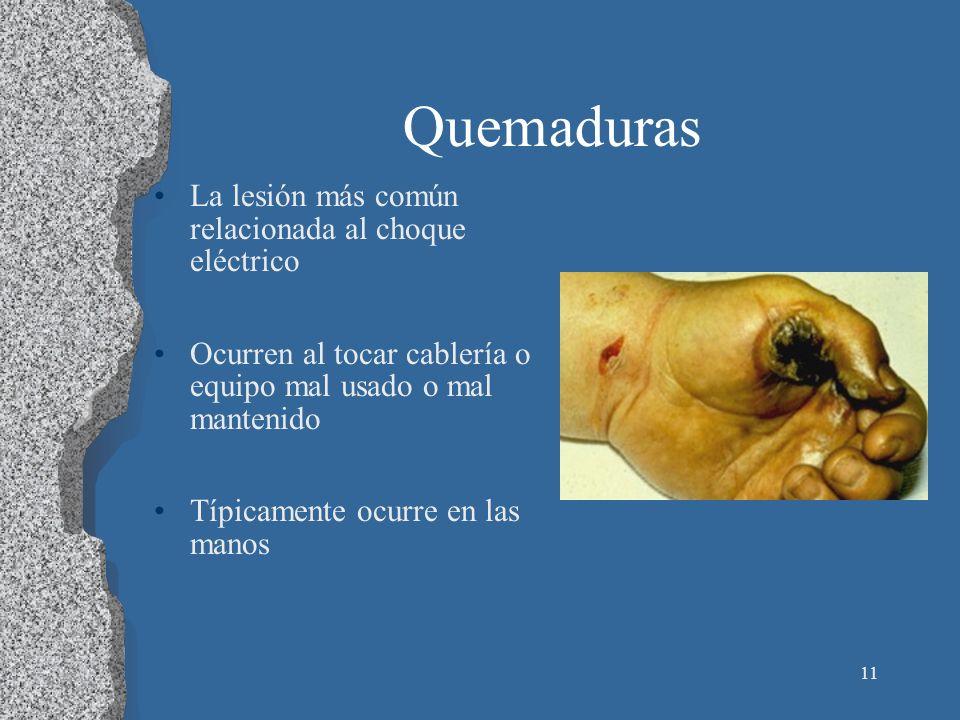 11 Quemaduras La lesión más común relacionada al choque eléctrico Ocurren al tocar cablería o equipo mal usado o mal mantenido Típicamente ocurre en l