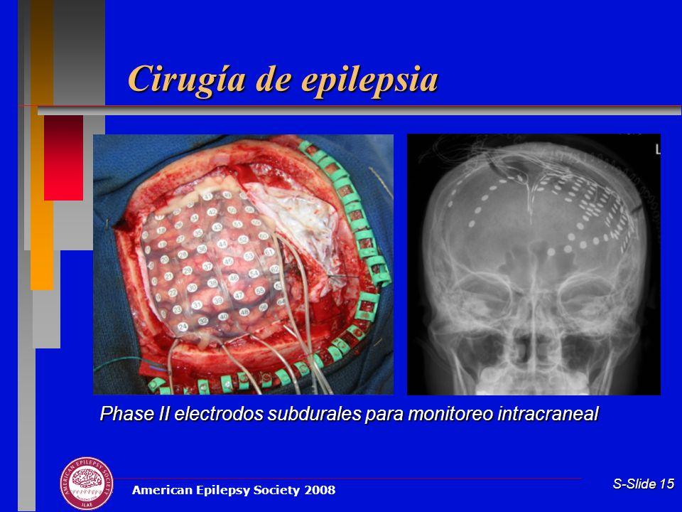 American Epilepsy Society 2008 S-Slide 15 Cirugía de epilepsia Phase II electrodos subdurales para monitoreo intracraneal