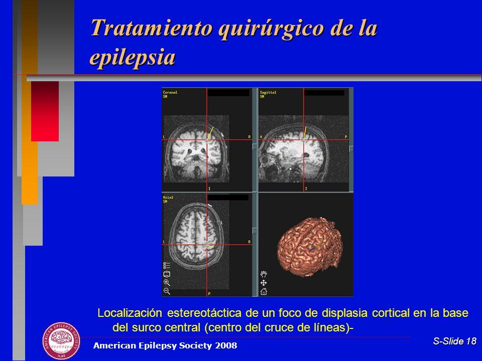 American Epilepsy Society 2008 S-Slide 18 Tratamiento quirúrgico de la epilepsia Localización estereotáctica de un foco de displasia cortical en la ba
