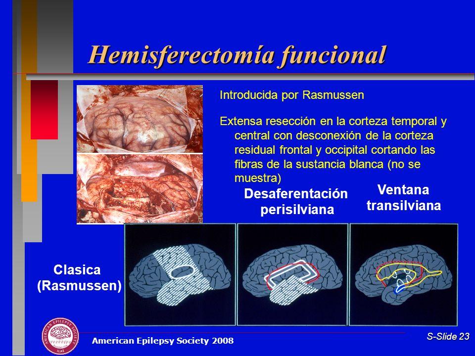 American Epilepsy Society 2008 S-Slide 23 Hemisferectomía funcional Introducida por Rasmussen Extensa resección en la corteza temporal y central con d