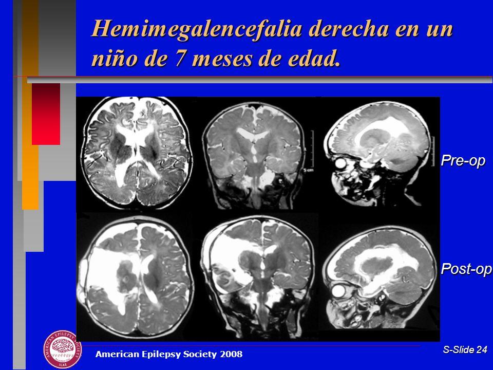 American Epilepsy Society 2008 S-Slide 24 Hemimegalencefalia derecha en un niño de 7 meses de edad. Pre-opPost-op