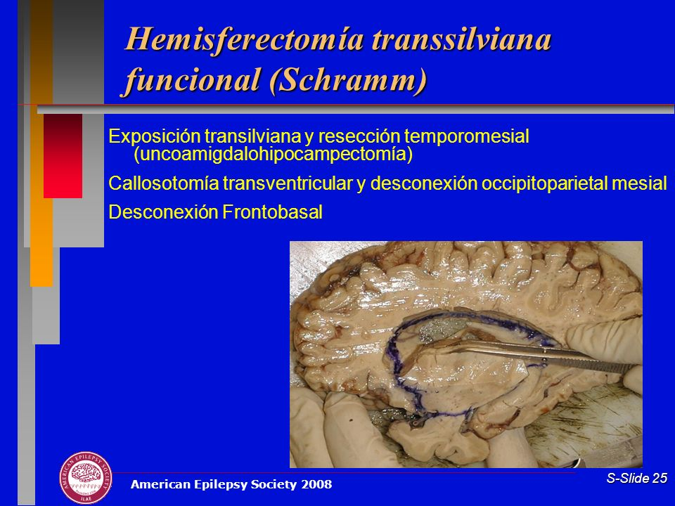 American Epilepsy Society 2008 S-Slide 25 Hemisferectomía transsilviana funcional (Schramm) Exposición transilviana y resección temporomesial (uncoamigdalohipocampectomía) Callosotomía transventricular y desconexión occipitoparietal mesial Desconexión Frontobasal